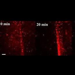 Con le nanoparticelle si curano le fratture